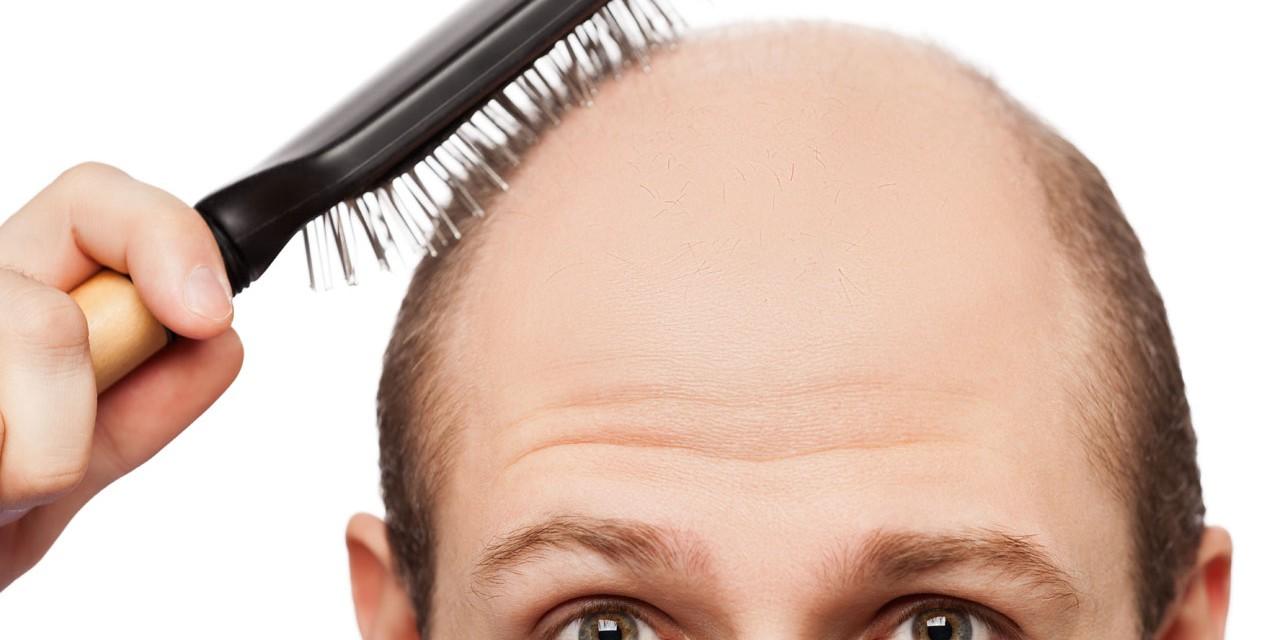3 Ways To Treat Hair Loss