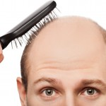 3 Ways To Treat Hair Loss