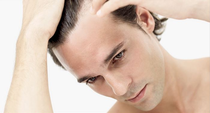 Are You At Risk For Hair Loss?