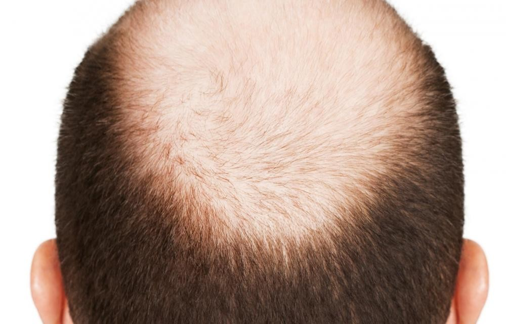 7 Stages of Male Pattern Baldness