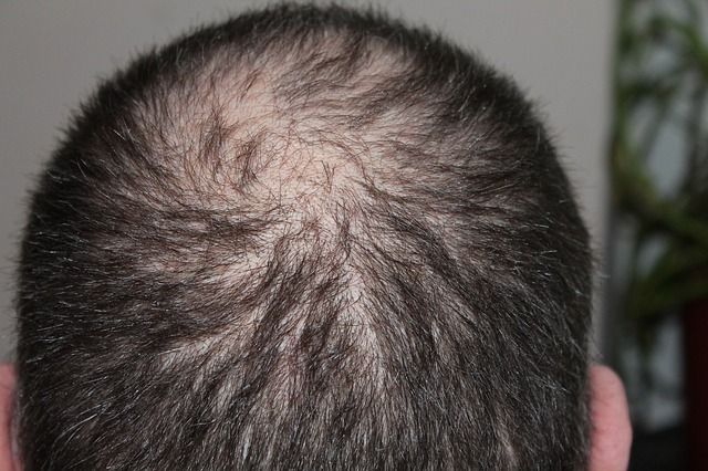 Topical Anthralin for Hair Loss: 4 Pros and Cons