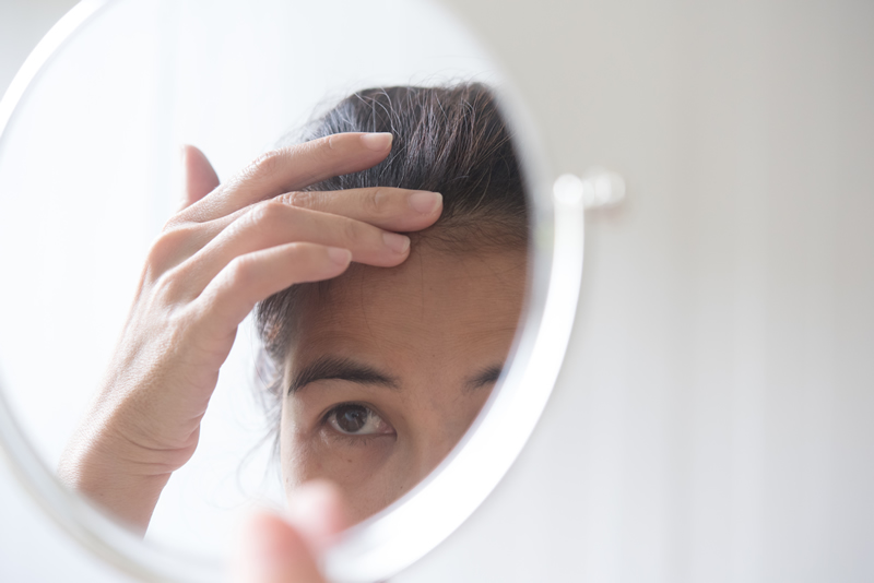 Psychological impact of hair loss to women